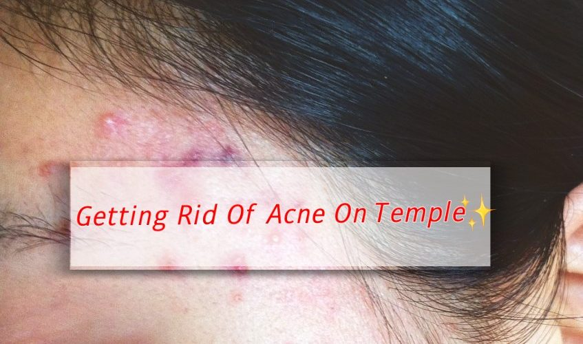 How To Treat Temple Acne With This One Simple Trick 👑