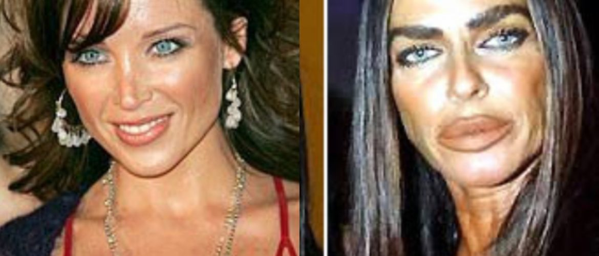Before And After   When These Celebrities Developed An Obsession With Cosmetic Surgeries 💉