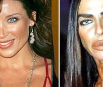Before And After | When These Celebrities Developed An Obsession With Cosmetic Surgeries 💉